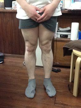 長年の酷いX脚が足を触らずある場所を数分施術して変化した!